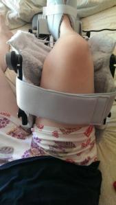 Jenny Hansen Hip Rehab